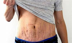 Men With Stretch Marks ???? | ThePatriot