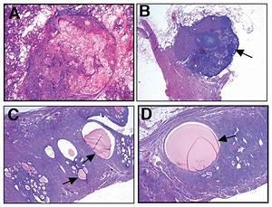 Mammary Gland  Ovary  Pituitary And Uterine Anomalies