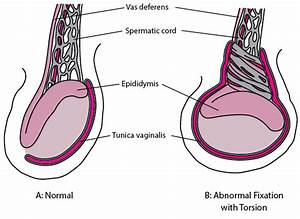 Testicular Torsion - Genitourinary Disorders