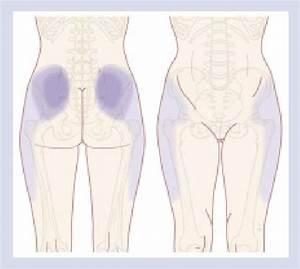 Pain Distribution Pattern Of Lumbar Facet Pain  Adapted