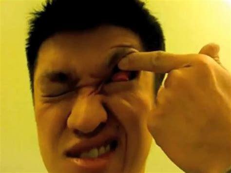 Eye itching that gets worse or lasts longer than 72 hours; Grossness Alert! Man Sets Bizarre World Record for Most Eyelid Flips in 30 Seconds