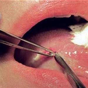 Oral  Mouth  Biopsy
