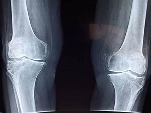 Knee joint signals bones to grow