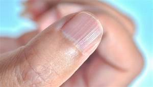 What Your Fingernails May Be Telling You About Your Health