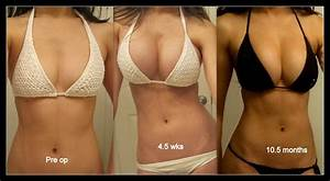Saline Implant Size Chart How Many Cup Sizes Did You Gain From Your Ba Just
