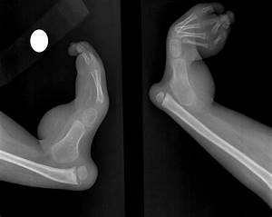 Bilateral Severe Tarsal And Metatarsal Bone Agenesis Are