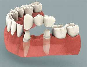 Your Comprehensive Guide To Dental Bridges
