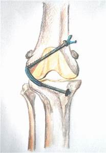 Cranial Cruciate Ligament Diagram : review article tightrope technique for cranial cruciate ~ A.2002-acura-tl-radio.info Haus und Dekorationen