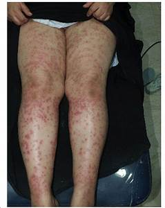 Numerous Palpable Purpura Over Both Thighs And Legs After
