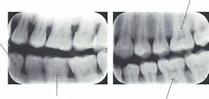 Pulp Stone Observed Inside The Pulp Chambers Of The Molars