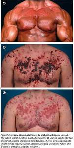 Graphic Evidence Against Steroid Abuse
