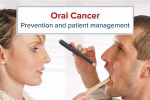 Oral Cancer Chairside Guide Now Available Online