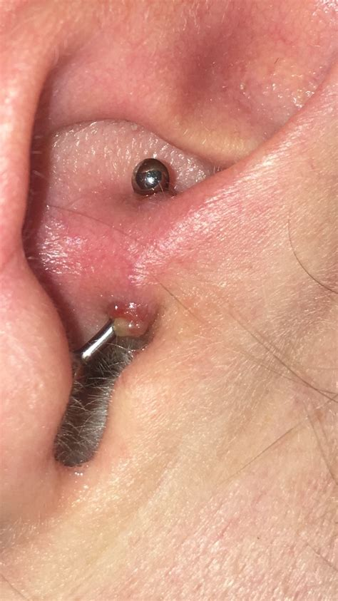 Help infected daith piercing with photo   Mumsnet