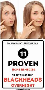 Pin On Acne Treatment Tips  U0026 Remedies For Men And Women