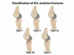 Updated Acl And Mcl Injuries For Postgraduate Orthopaedic