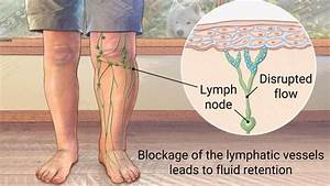 Older Man With A Swollen Lower Leg  Diagram Showing