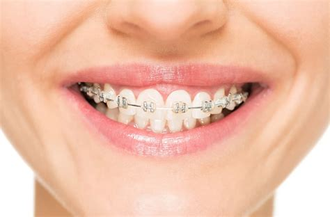 Nice friendly people and workers. Does Aetna Cover Braces for Adults?   Aetna Dental Offers