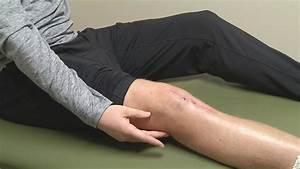Elbow Cartilage Regeneration