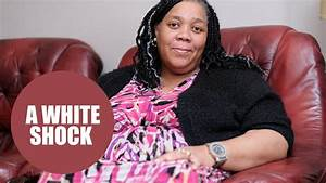 Black Woman Turning White Due To Ultra-rare Side Effect To Cancer Drug