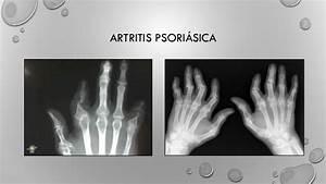 Artritis Psoriasica Radiologia Pdf