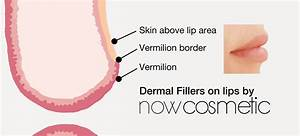 Lip Enhancement With Dermal Fillers
