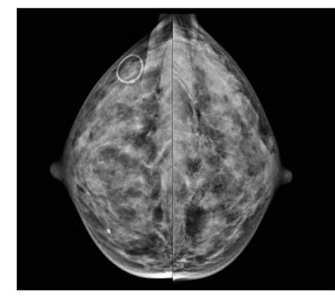 Breast cancer is the most commonly diagnosed cancer among women in the u.s. Breast Density Estimations in Standard-dose, Synthetic Mammograms