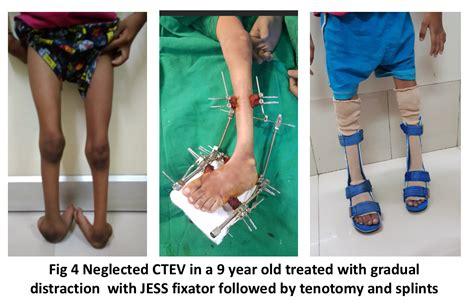 Unclear, associated with other dx (spina bifida and arthrogryp… club foot deformity characteristics. Clubfoot Congenital Talipes Equinovarus   Narayana Health