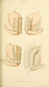 Manual Of Surgical Bandages  Devices And Dressings