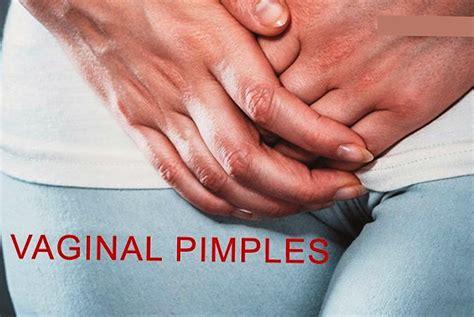 Vaginal Lip Pimples