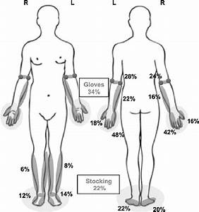 Pain Location For The 50 Subjects Evaluated  Represented