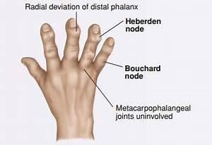 15 Joint Deformities In Rheumatoid Arthritis  Swan Neck