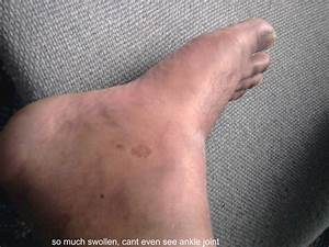 So Much Swollen  Cant Even See Ankle Joint