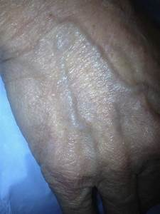 What Do Bulging Veins In The Wrist   Mean