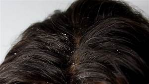 How To Get Rid Of Dandruff  Do You Need A Dandruff