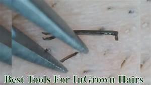 Ingrown Hair Removal Best Tools