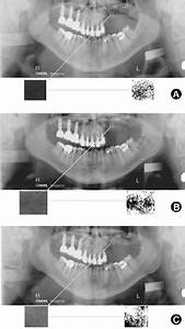Panoramic Radiographic Examination  A  Before Sinus