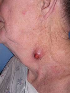 Keratin Granuloma  Inflamed Or Ruptured Cyst  Inflamed Or Ruptured Epidermal Inclusion Cyst
