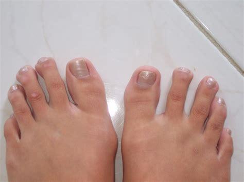 Emeline Conine Hammer Toe Caused By Trauma