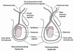 Testicular And Scrotal Anomalies - Pediatrics