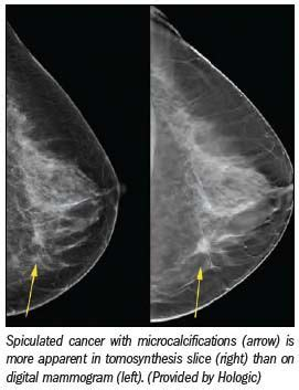A day before the mri i received notice that insurance would not cover the exam and they cancelled the mri. Breast tomosynthesis gets ready for U.S. market | Diagnostic Imaging