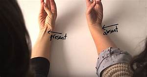 Does Your Wrist Tendon Stick Out  This Is What It Means  I