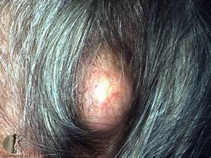 Pilar Cyst On the Scalp: Pictures, Symptoms, Removal Video ...
