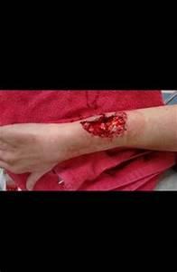 Vicious Dog Attacks - Oklahoma Dog Bites