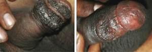 Anogenital Warts A B